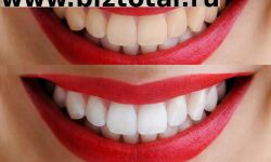 Студия отбеливания и чистки зубов в ЦАО